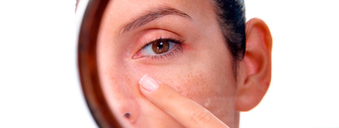Verano: tiempo de manchas en la piel , cuidado. - Diciembre ...
