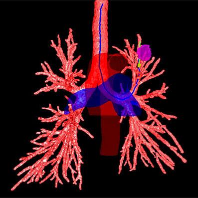 Broncoscopía diagnóstica de avanzada - Procedimientos | Clínica ...