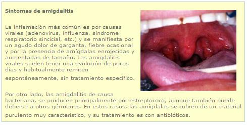 Extracción de amígdalas en adultos - Enero | Clínica Alemana de Santiago