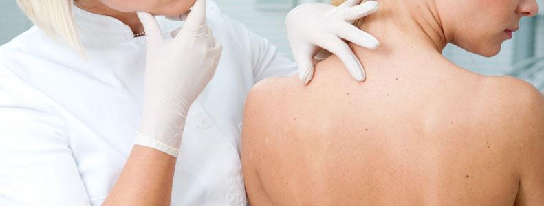 Lunares de carne: tumores benignos que pueden incomodar - Enero ...